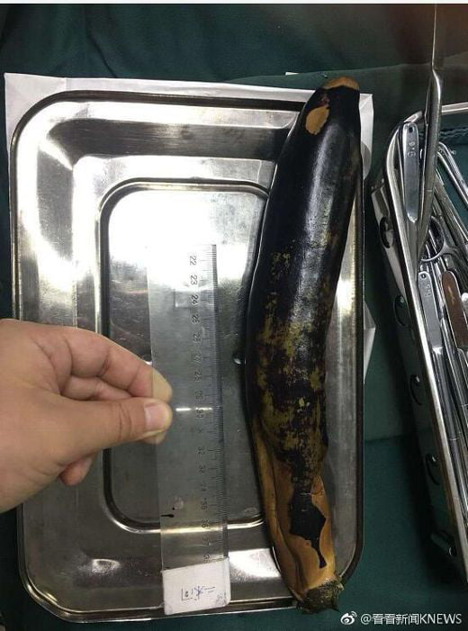 Man Shoves Eggplant Up His Anus To Cure Constipation